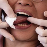 New treatments for oral cancer with chinese herbs